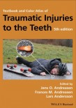 Traumatic Injuries to the Teeth 2019