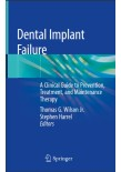 Dental Implant Failure